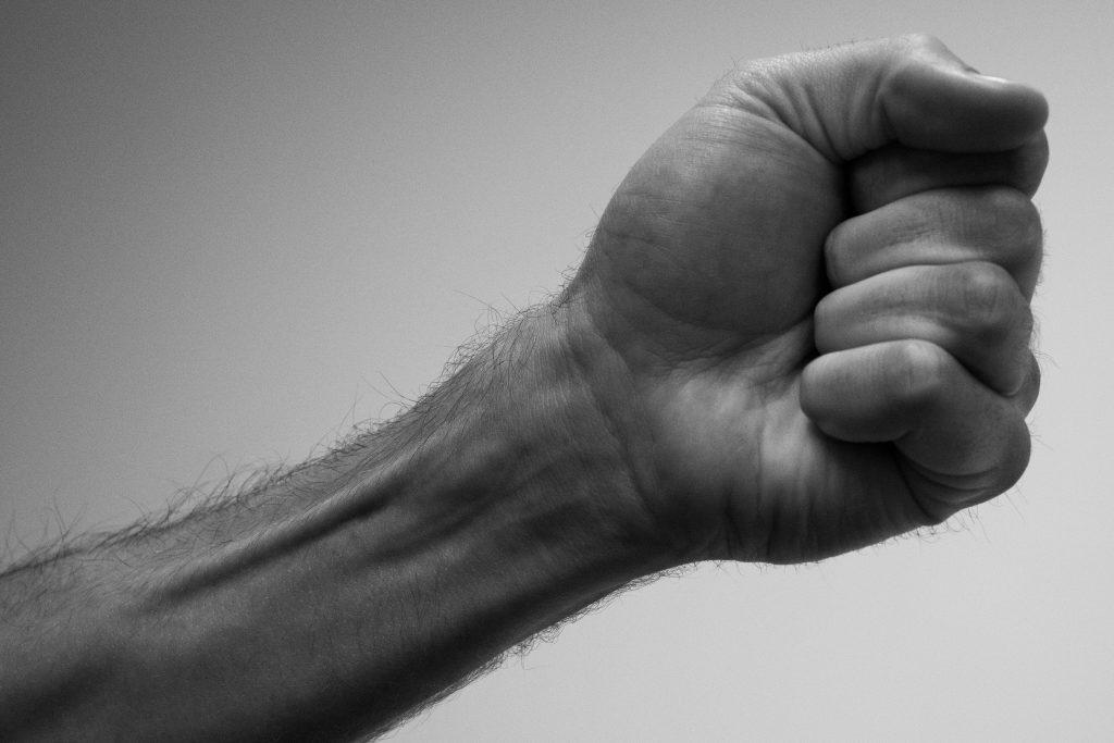 Arthrose der Fingergelenke