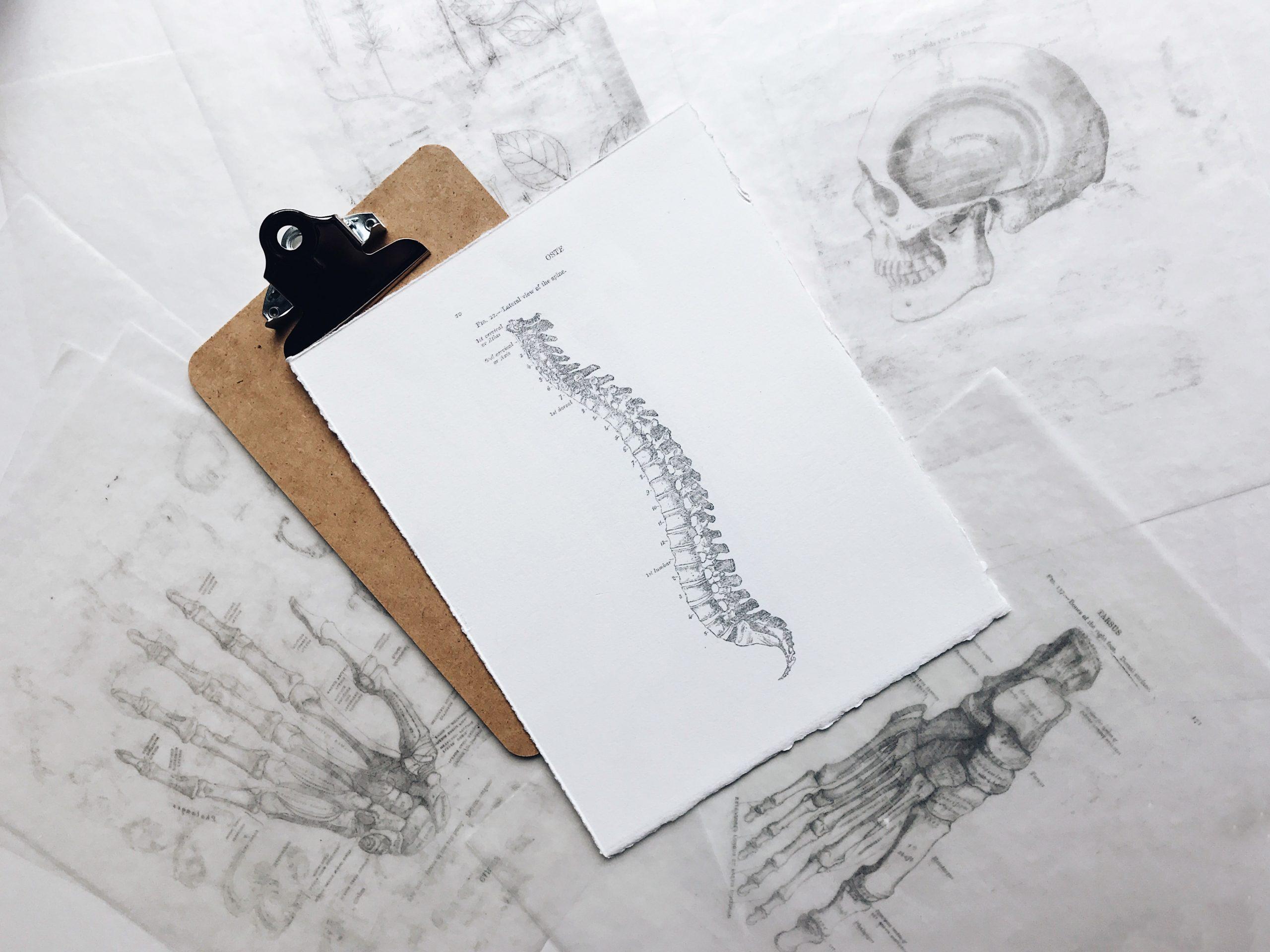 Diagnostik bei Arthrose